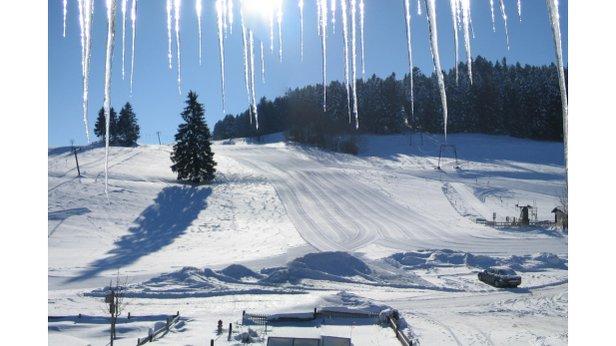 Oberberglifte Simmerberg | Skigebiet Weiler-Simmerberg